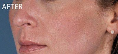 After skin peel