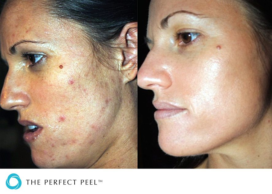 Before & after skin peel 4