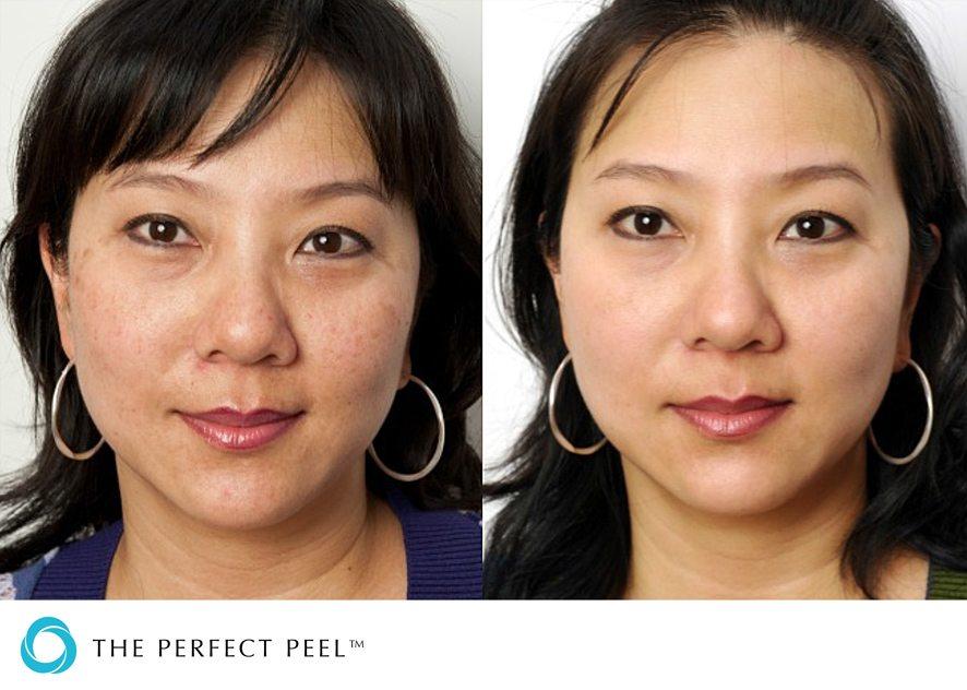 Before & after skin peel 3