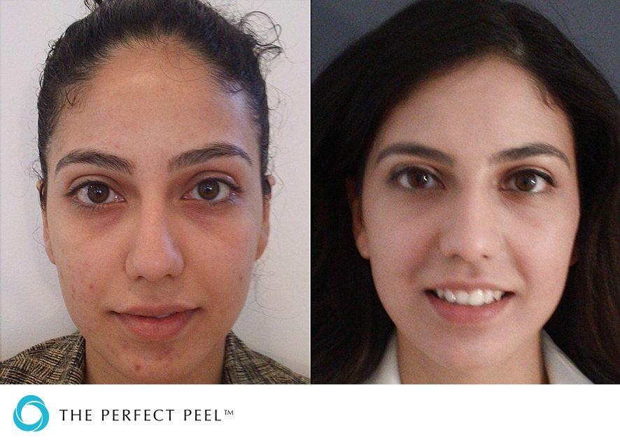 Before & after skin peel 2
