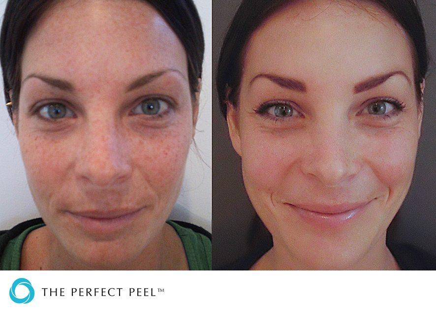 Before & after skin peel 1