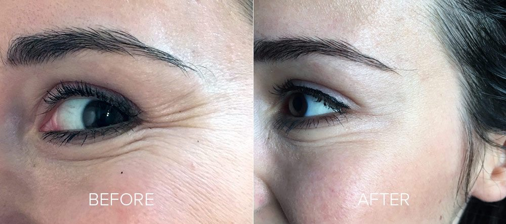 before and after wrinkle reduction 2