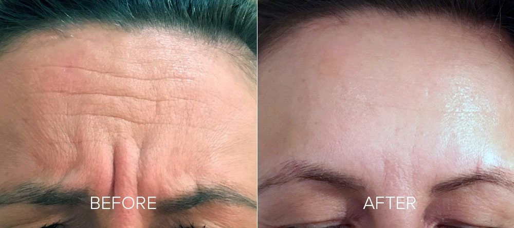 before and after wrinkle reduction 3