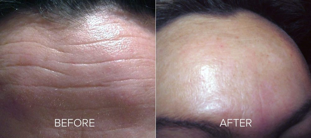 before and after wrinkle reduction 4