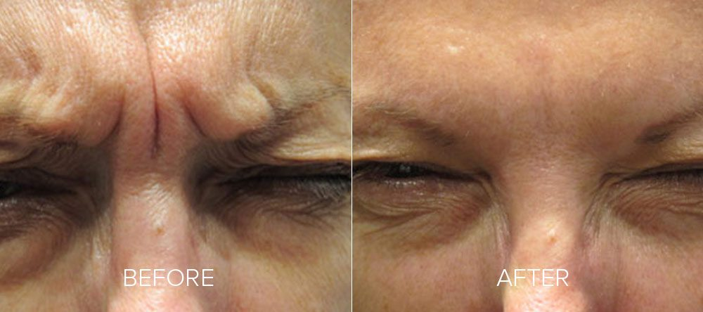 before and after wrinkle reduction 5