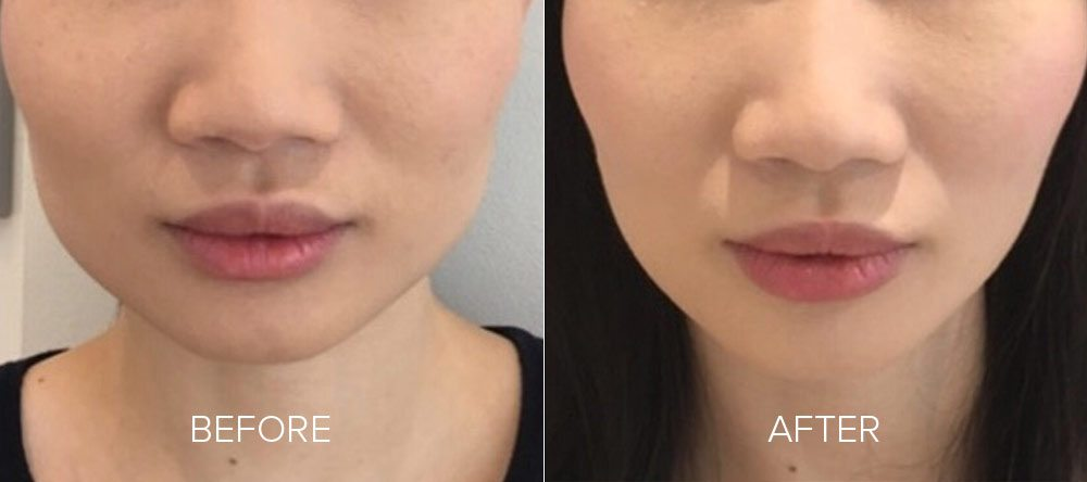 before and after wrinkle reduction 6