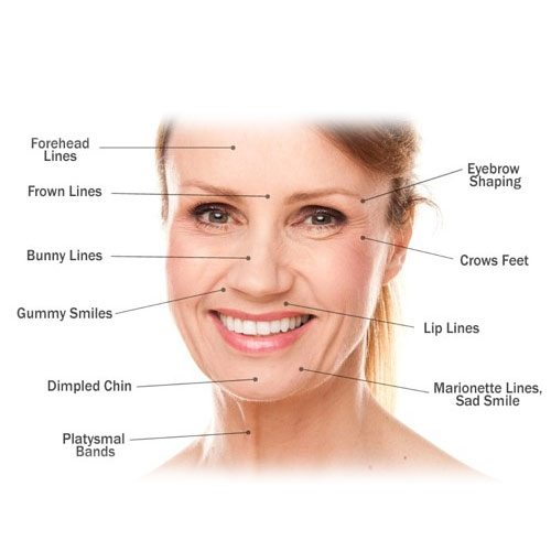wrinkle-reduction treatment