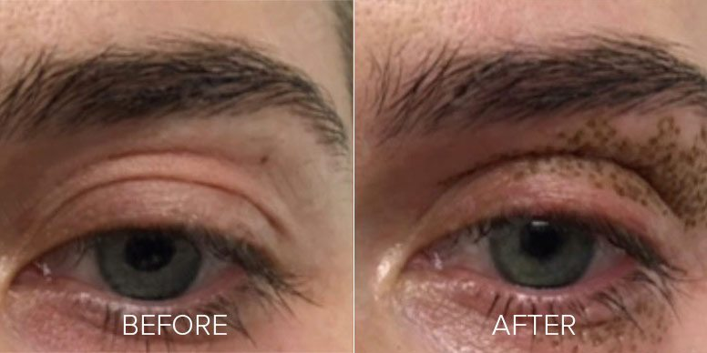 before and after plasma bt
