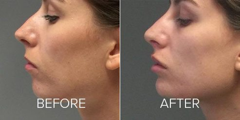 cheeks volumisation before and after