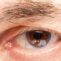 hooded eye lid