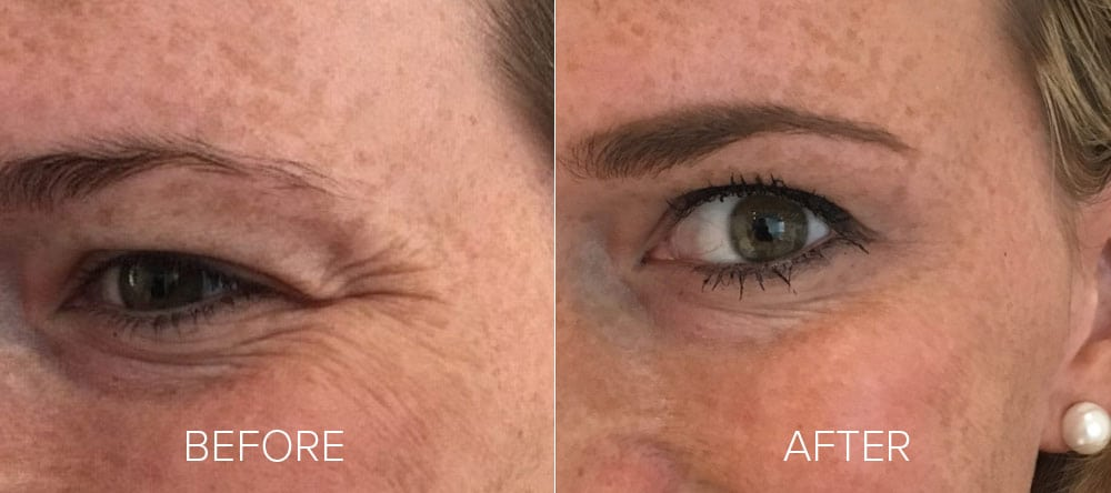 before and after wrinkle reduction